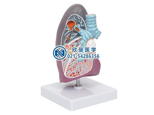 XM-517D病理肺模型,肺部病变模型
