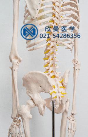 模型脊柱侧面