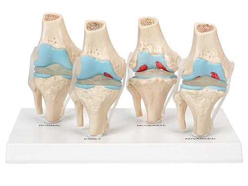 XM-143B膝关节健康病态比较模型,膝关节模型