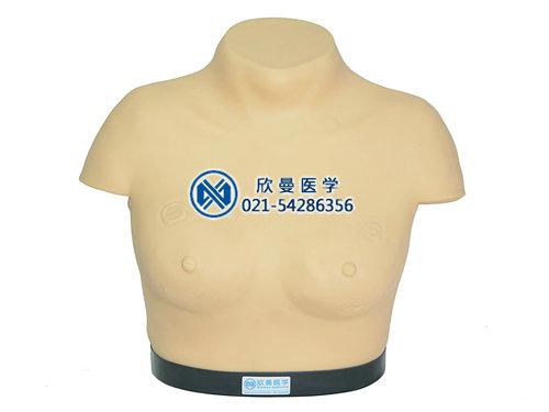 乳腺视诊与触诊模型
