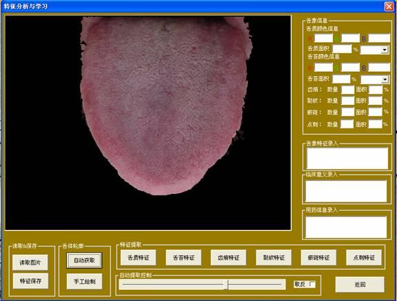中医舌像采集分析仪分析与学习界面