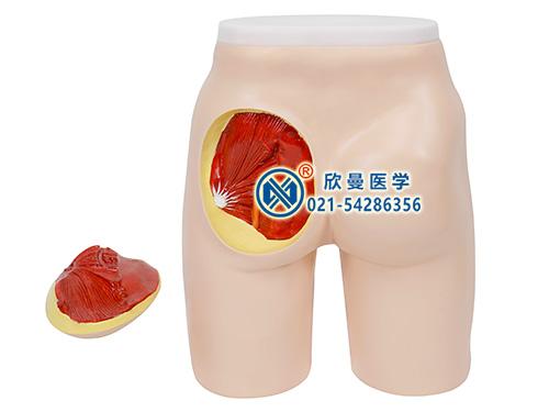 XM-TB1高级臀部肌肉注射与解剖结构模型,带解剖结构臀部注射模型