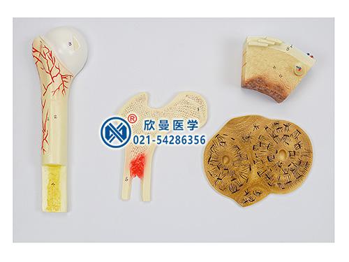 XM-166骨骼构造模型,骨的构造模型