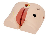 高级褥(压)疮护理模型