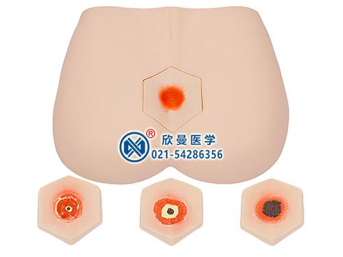 XM-RC1阶段褥疮护理模型