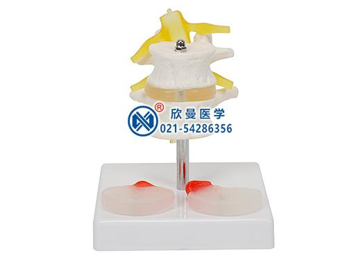 XM-135D2节腰椎附2个病变椎间盘模型