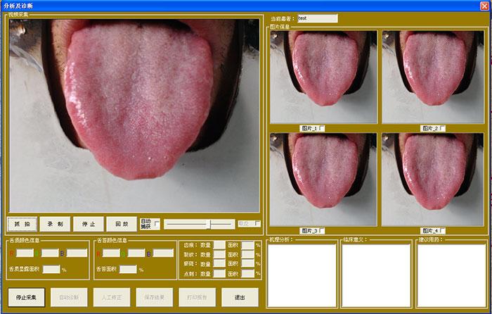 舌像仪视频采集