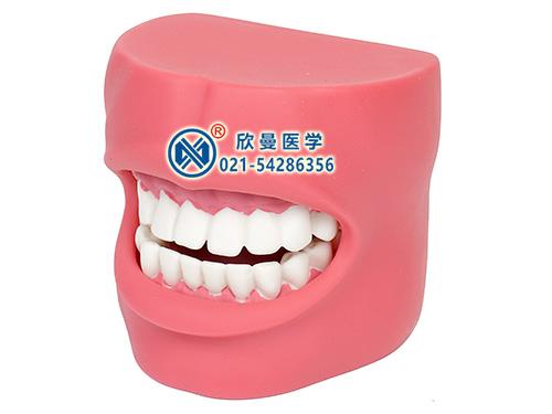 XM-KQ2牙护理保健模型,口腔护理模型