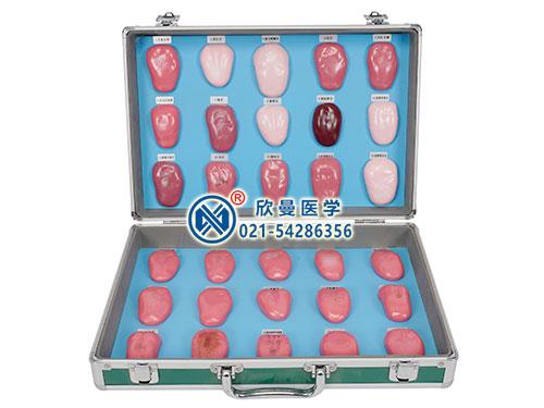 XM-ST30舌苔模型,舌诊模型,舌像模型