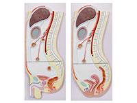 腹膜矢状切面模型