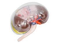 透明肾脏模型