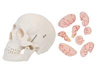 头颅骨带脑动脉模型