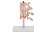 骨质疏松模型 脊椎典型病变模型