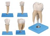 牙放大模型