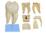磨牙蛀牙解剖放大模型