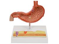 病理胃模型(胃炎模型)
