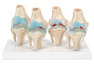 膝关节健康病态比较模型