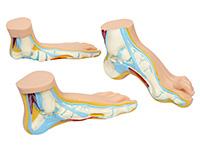 足弓模型 正常足弓形足扁平足