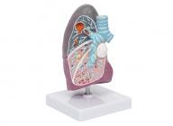 病理肺模型(肺部病变模型)