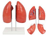肺解剖模型